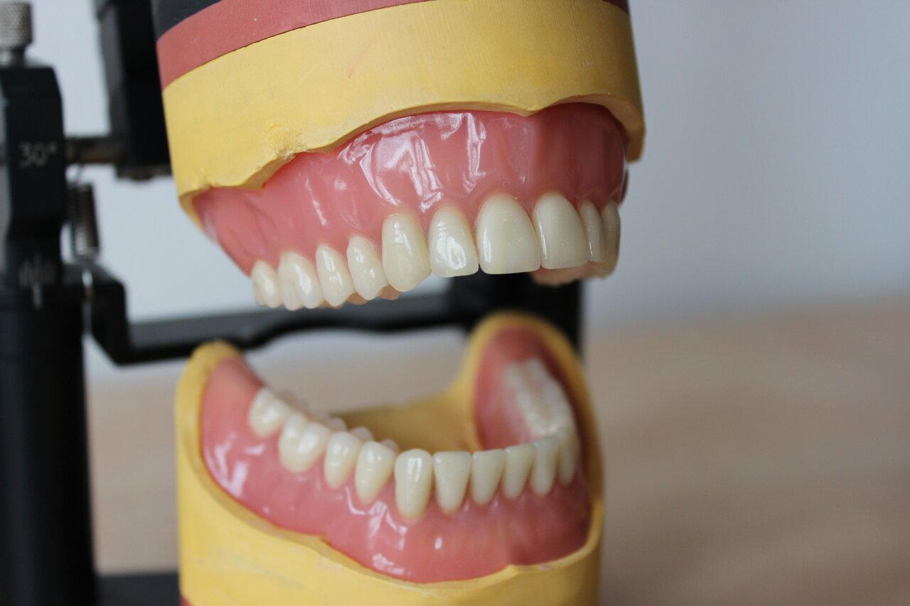 Ohne gaumenplatte zahnprothese Vollprothese ohne