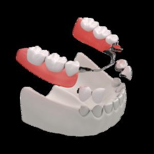 Günstige Zahnprothese mit 4 Jahren Garantie