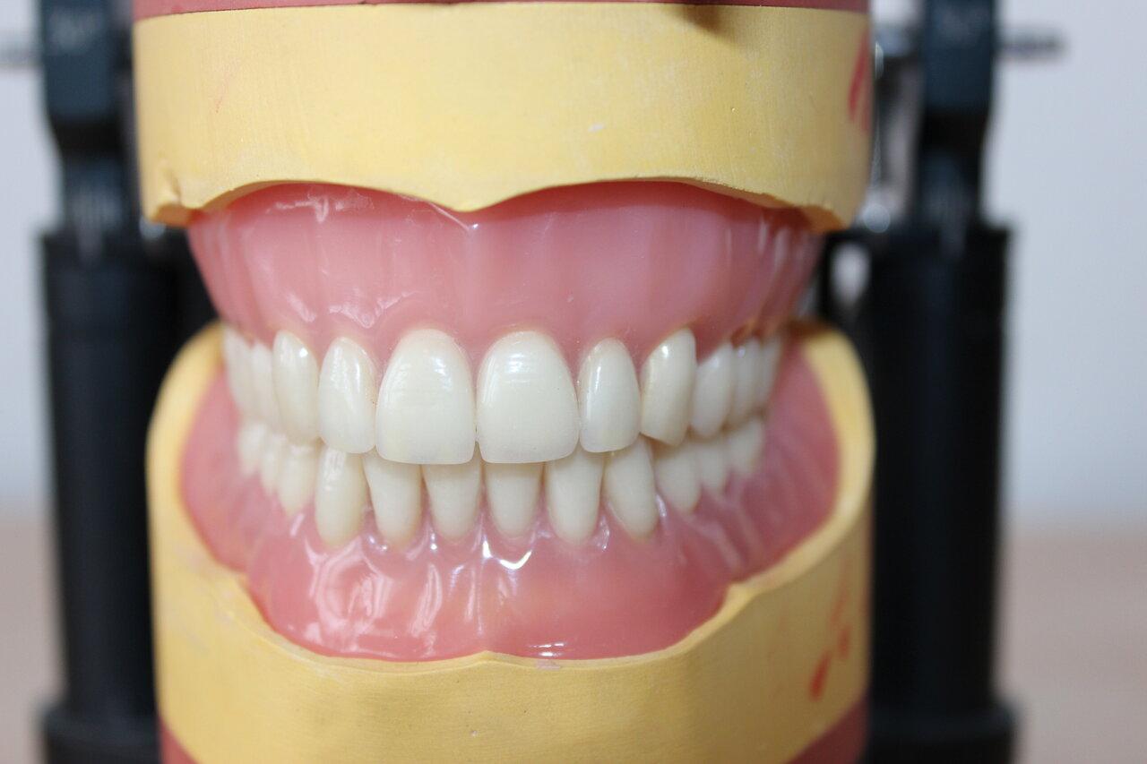 Geht nicht raus zahnprothese siadingworkfu: Zahnprothese