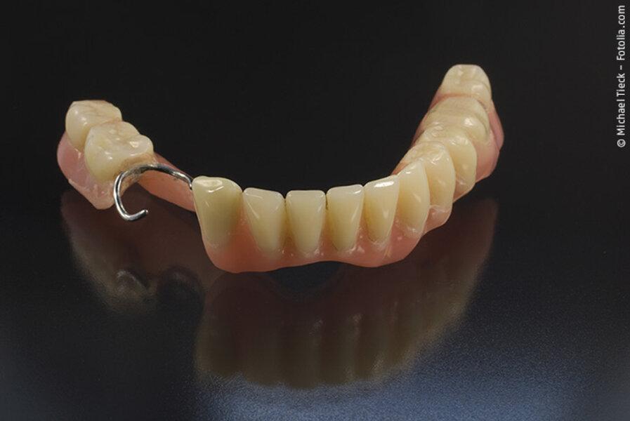Füllung rausgefallen provisorische wurzelbehandlung Zahnfüllung herausgefallen