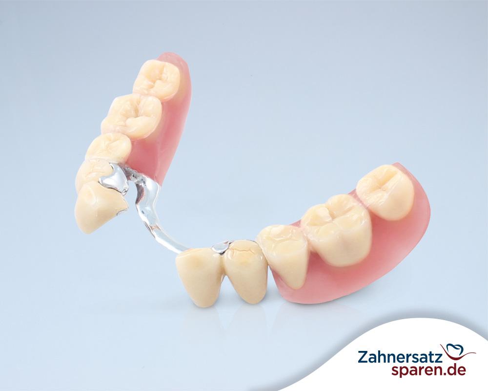 Oberkiefer ohne gaumenplatte zahnprothese Zahnprothese Oberkiefer