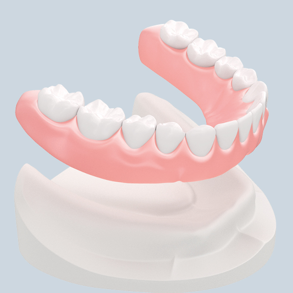 Zahnersatz ohne gaumenplatte herausnehmbarer Re:Unverträglichkeit der